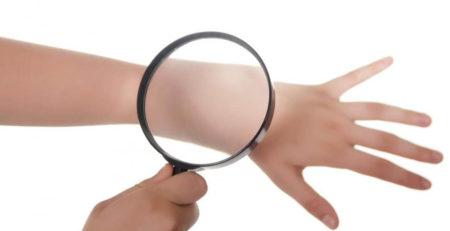 5 причин раннего старения кожи